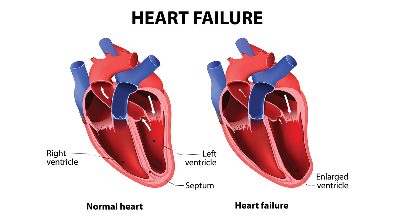 Understanding Heart Failure in the Elderly - AgingCare.com