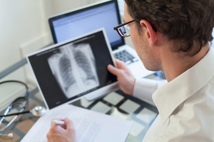 physician looking at an x-ray of the lungs