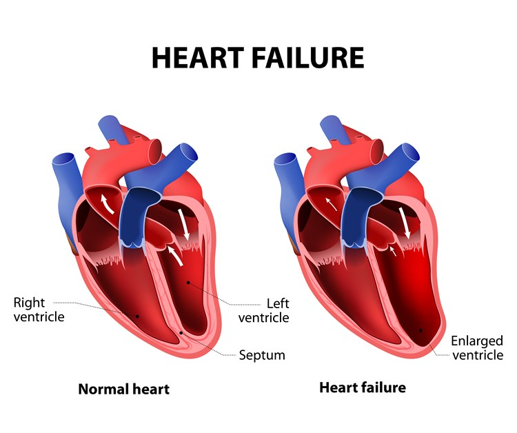 Side-by-side diagrams of a normal heart and one with heart failure