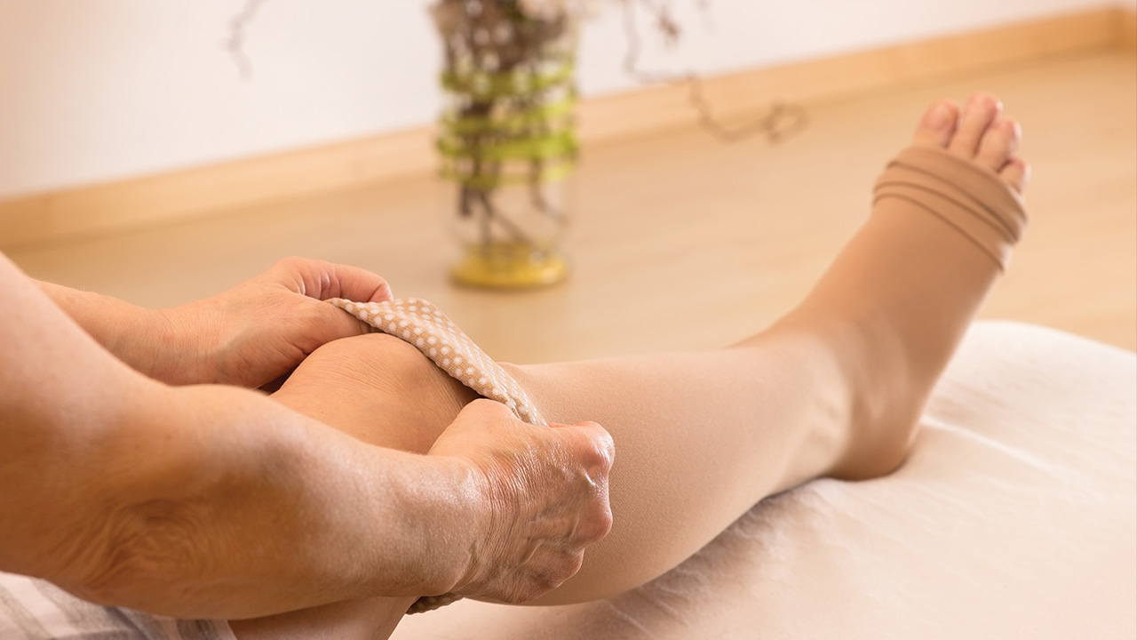 Caring for a Senior With Edema-Image